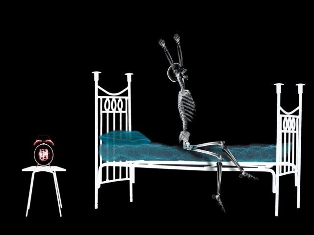 X-Ray xr1.jpg